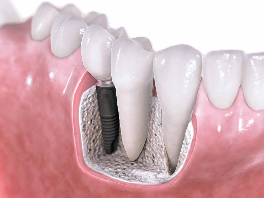 fogsor készítéskor alkalmazott fogbeültetés