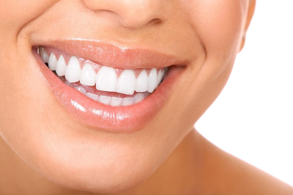 szép fogsor